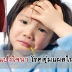 โรคเฮอร์แปงไจนา โรคตุ่มแผลในปากเด็ก (กลุ่มเดียวกับโรคมือ เท้า ปาก)