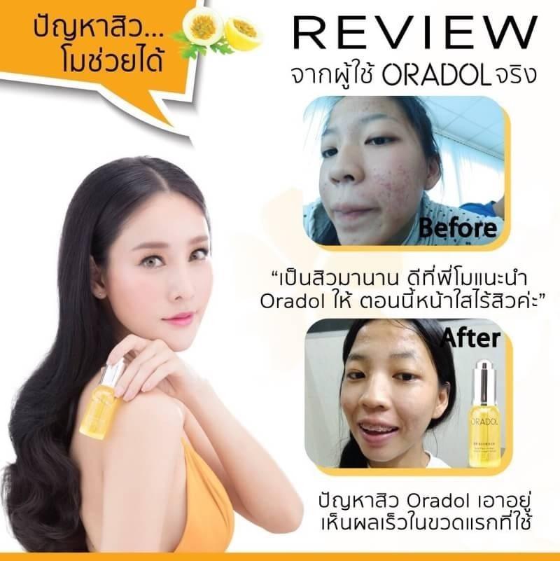 Oradol G9 Essence serum รีวิว